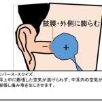 耳抜き(圧平衡)のテクニック