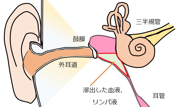 squeeze1