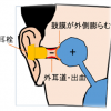 外耳圧外傷 | 外耳道スクイーズ