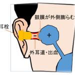 スキューバー、フリー、スキンダイビングの耳抜き 仕方、方法 【図解】