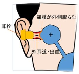 外耳圧外傷